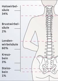 Rückenschmerzen – fast eine Epidemie in Industriestaaten