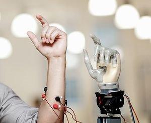 Armprothese nutzt natürliche Gedankensteuerung – Schwedische Entwicklung mit Nerveninterface vor baldiger Implantation