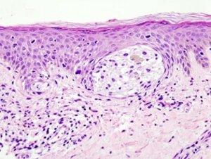 """Hautkrebs: Weitere genetische Ursache entdeckt – Mutation bewirkt Übereifer des """"Unsterblichkeitsenzyms"""" Telomerase"""
