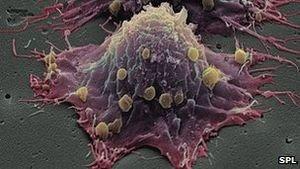 Krebs: Wachstumsstress stört genetischen Code – Neue Therapie mit mehr Nährstoffen könnte Gefährlichkeit verringern