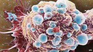 Krebszellen: Nanopartikel zerstören Turmor bei direktem Kontakt (Foto: SPL)