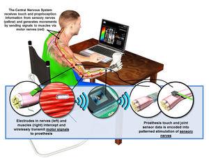 US-Militär entwickelt Prothesen mit Tastsinn – Pentagon-Forschungsbehörde will besseres Körpergefühl ermöglichen