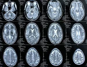 Ekelreaktion kann politische Orientierung anzeigen – Gehirnscans machen neuronale Signatur erkennbar