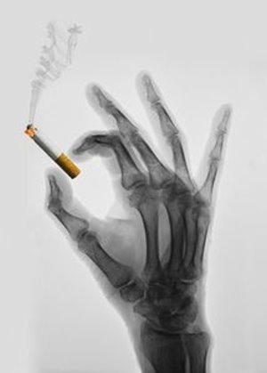 Raucher leben nach Herzinfarkt deutlich länger – 772 Menschen analysiert – Tabakliebhaber bei einem Vorfall jünger