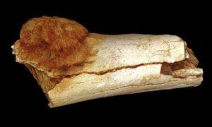 Krebs: Nachweis bei 1,7 Mio. Jahre altem Fossil – Tumor am Zeh eines frühen menschlichen Vorfahren gefunden