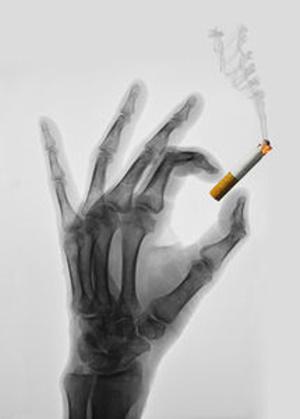 Rauchen verkürzt Lebenserwartung mehr als HIV – Über 40 Prozent der US-Patienten schaden sich damit noch mehr