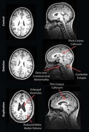 Autisten-Gehirne im MRT klar unterschiedlich . Veränderungen der Struktur entsprechen den Beeinträchtigungen